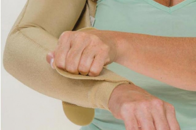 Living with Lymphedema. Benefits of Quality Medical Compression Garments