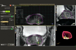 Precision Focused Biopsies A New Way to See If You Have Prostate Cancer
